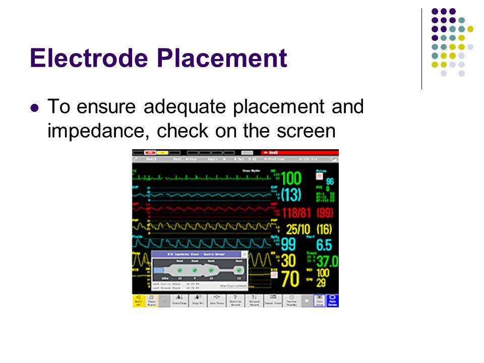 Electrode Placement To ensure adequate placement and impedance, check on the screen