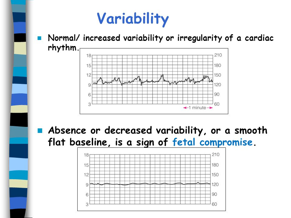 Variability Normal/ increased variability or irregularity of a cardiac rhythm.