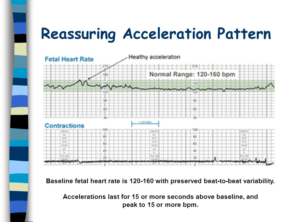 Reassuring Acceleration Pattern