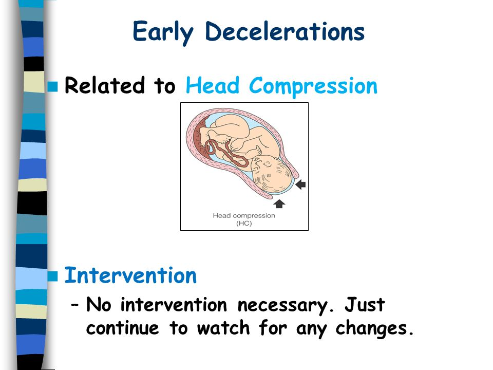 Early Decelerations Related to Head Compression Intervention