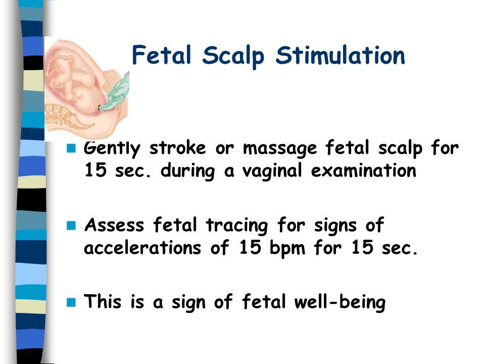 Fetal Scalp Stimulation