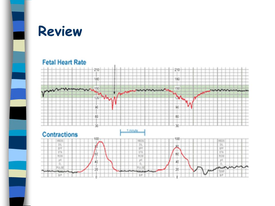 Review Late deceleration