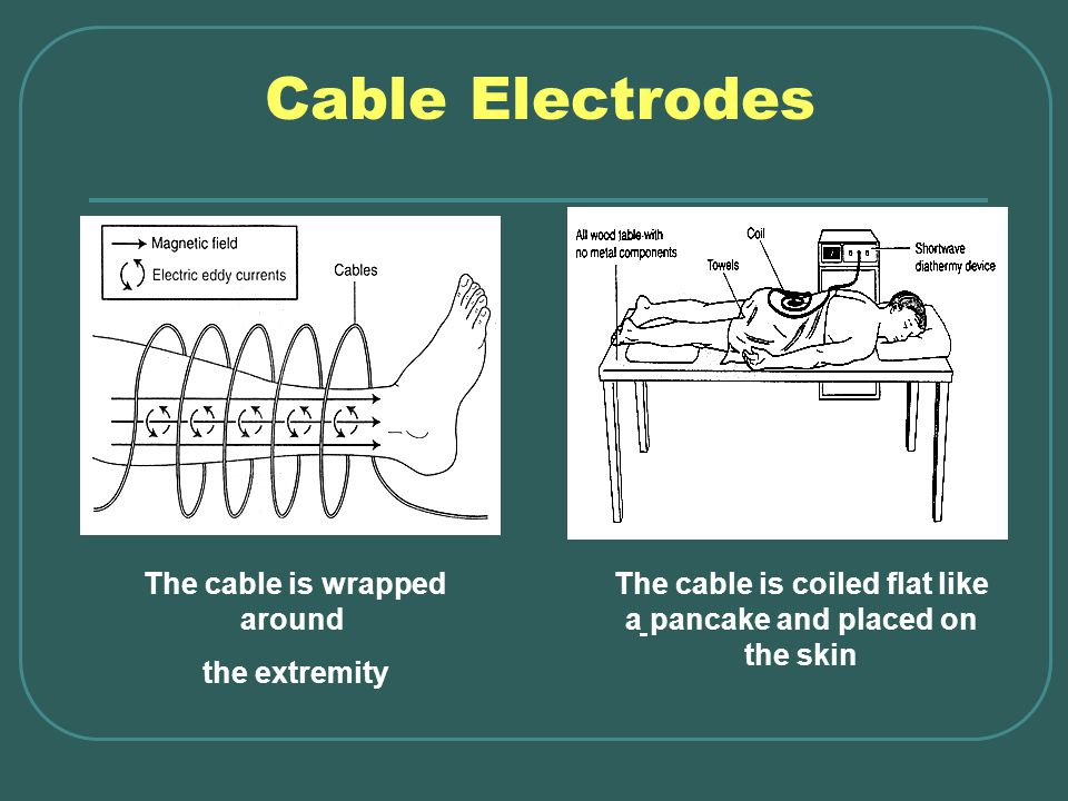 Cable Electrodes The cable is wrapped around the extremity