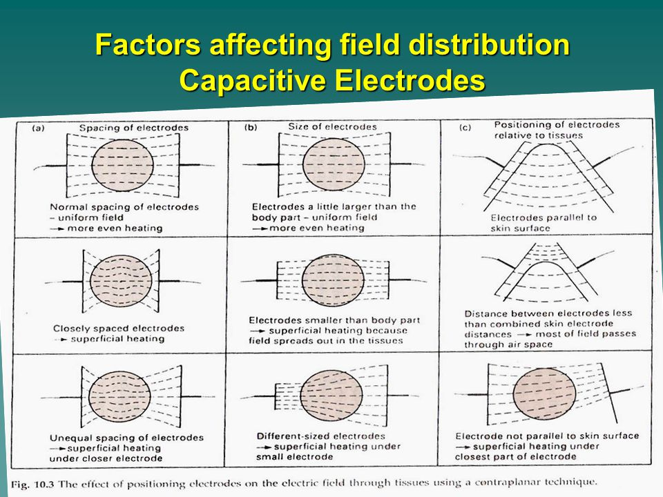 Factors affecting field distribution Capacitive Electrodes