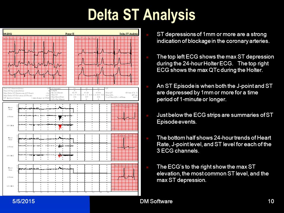 Delta ST Analysis ST depressions of 1mm or more are a strong indication of blockage in the coronary arteries.