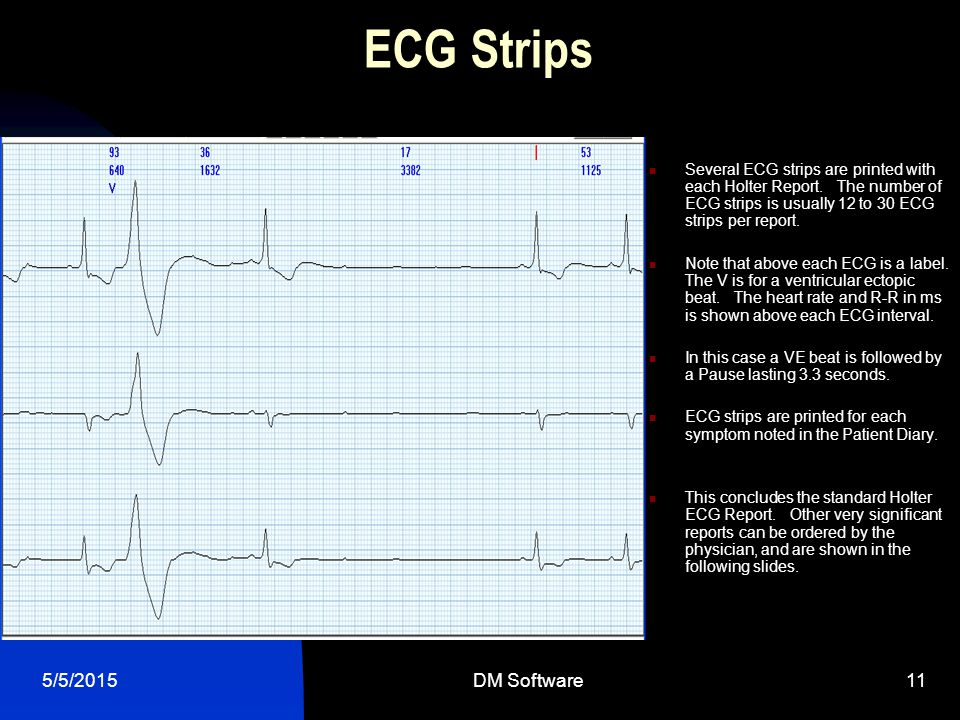 ECG Strips 4/14/2017 DM Software