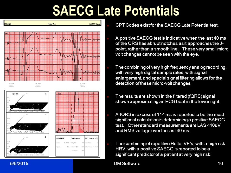 SAECG Late Potentials CPT Codes exist for the SAECG Late Potential test.
