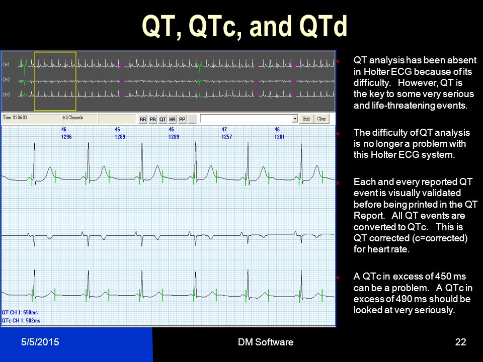 QT, QTc, and QTd