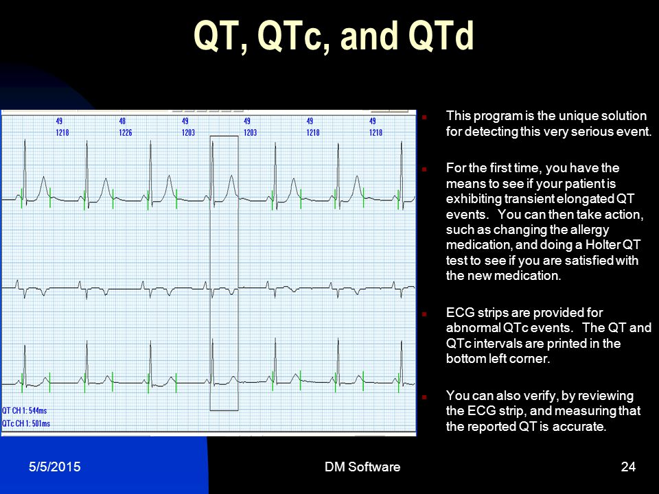 QT, QTc, and QTd This program is the unique solution for detecting this very serious event.