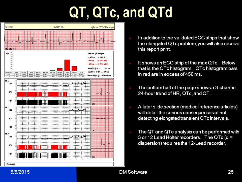 QT, QTc, and QTd In addition to the validated ECG strips that show the elongated QTc problem, you will also receive this report print.