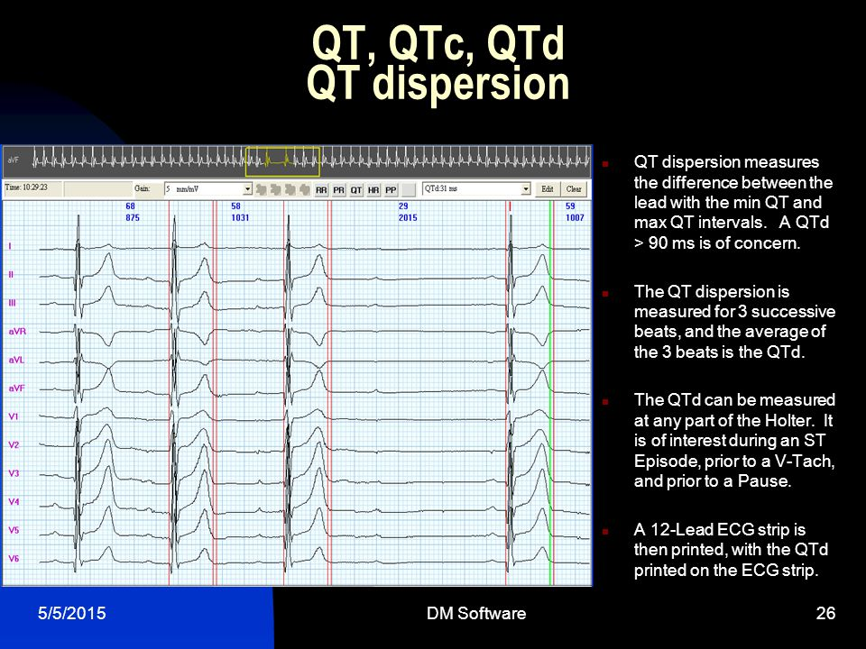 QT, QTc, QTd QT dispersion