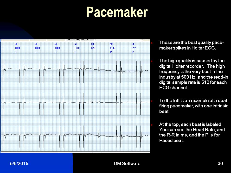 Pacemaker These are the best quality pace-maker spikes in Holter ECG.