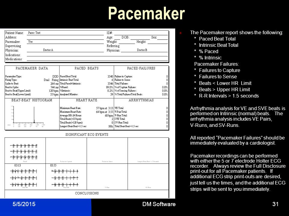 Pacemaker 4/14/2017 DM Software