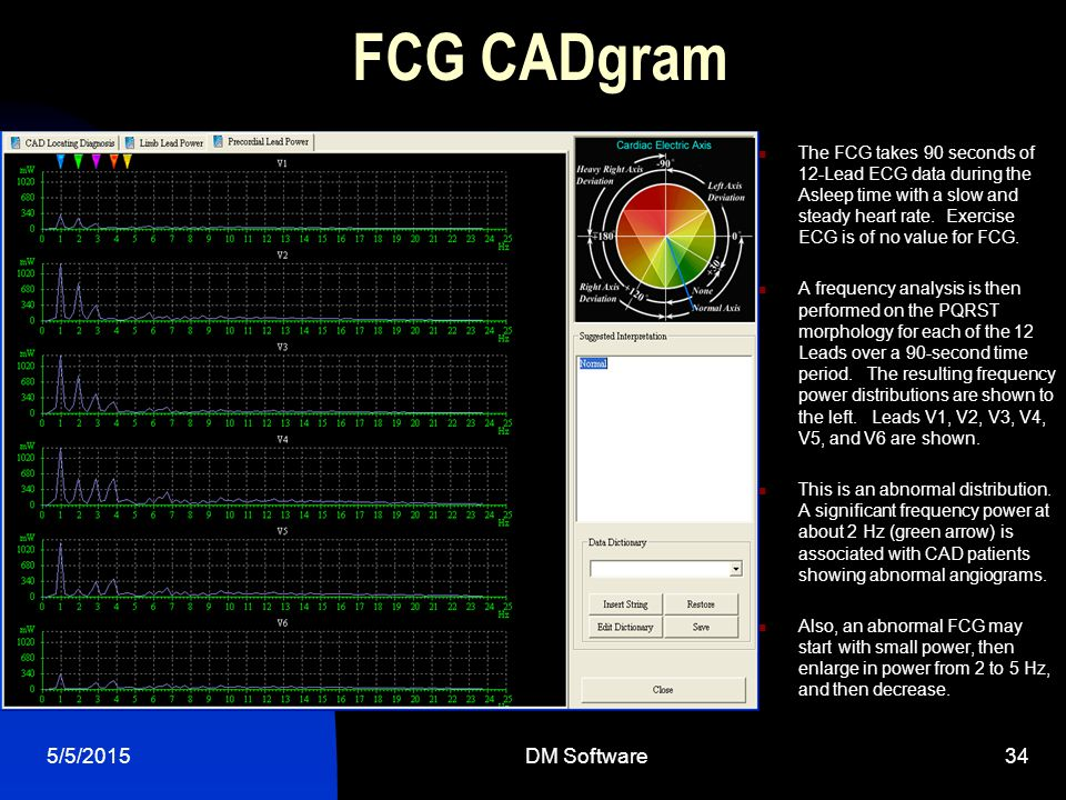 FCG CADgram 4/14/2017 DM Software