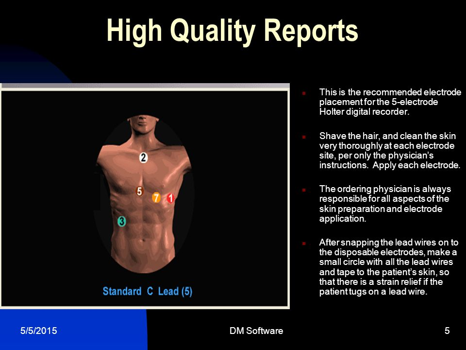High Quality Reports This is the recommended electrode placement for the 5-electrode Holter digital recorder.