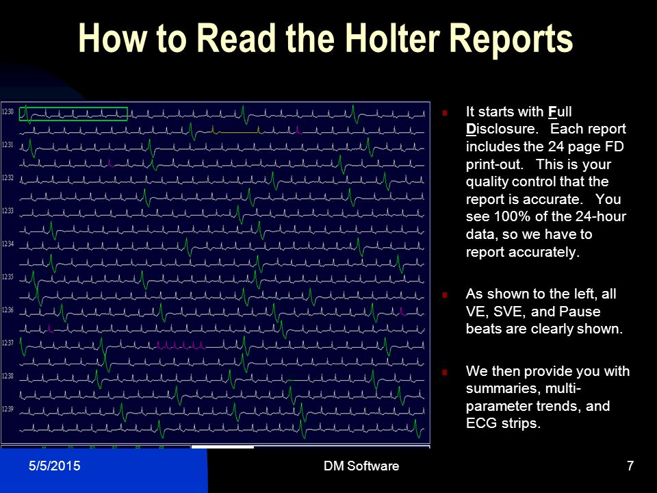 How to Read the Holter Reports
