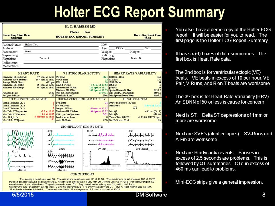 Holter ECG Report Summary