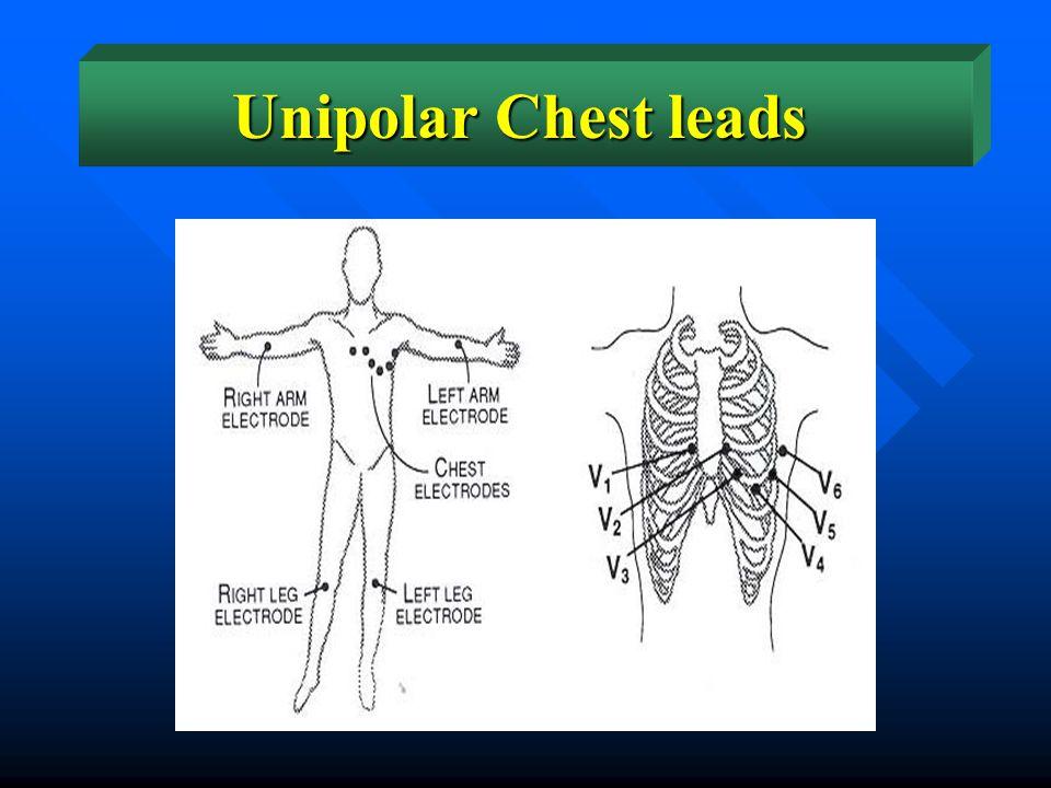 Unipolar Chest leads