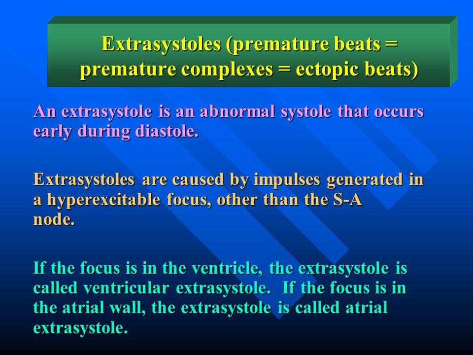 Extrasystoles (premature beats = premature complexes = ectopic beats)