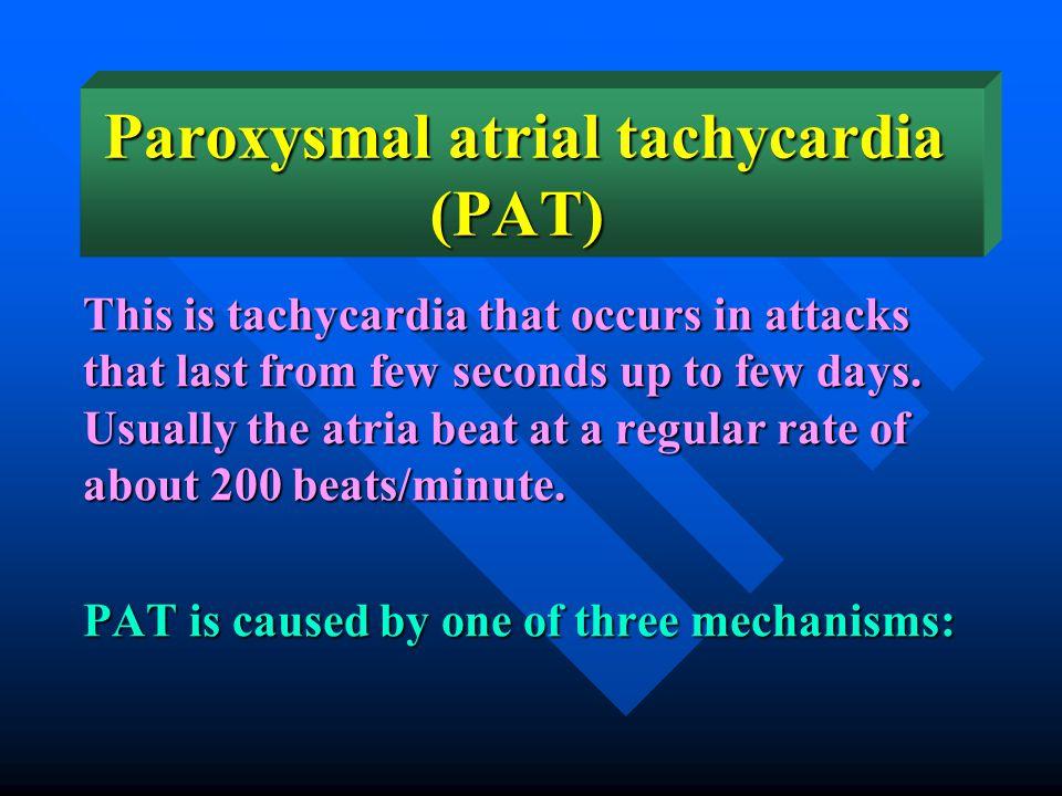 Paroxysmal atrial tachycardia (PAT)