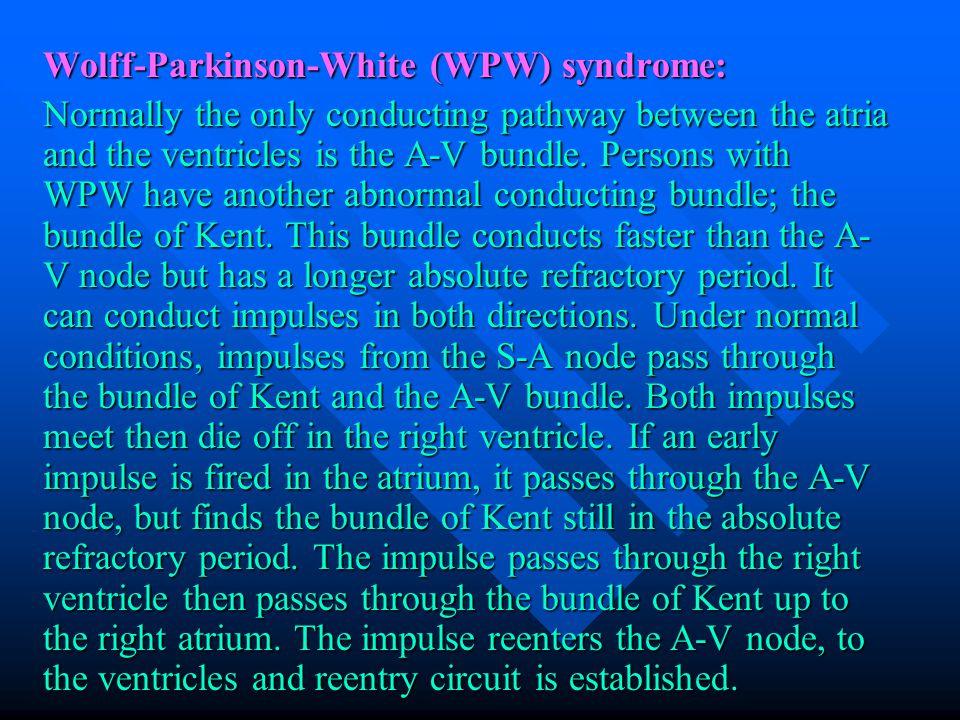 Wolff-Parkinson-White (WPW) syndrome: