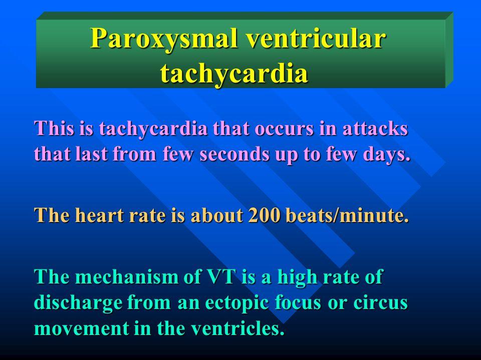 Paroxysmal ventricular tachycardia