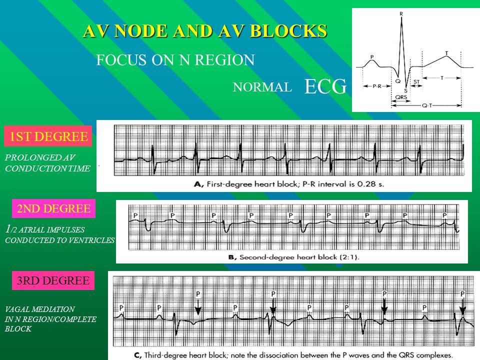 ECG AV NODE AND AV BLOCKS FOCUS ON N REGION NORMAL 1ST DEGREE