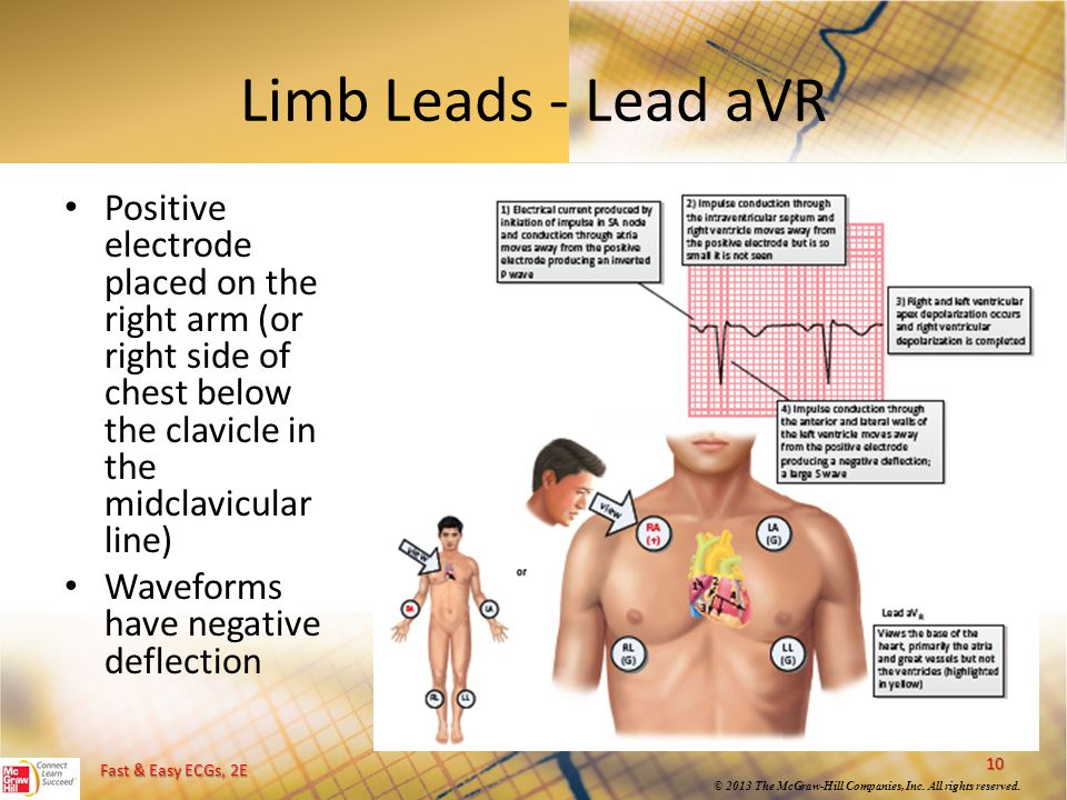 Limb Leads - Lead aVR Positive electrode placed on the right arm (or right side of chest below the clavicle in the midclavicular line)