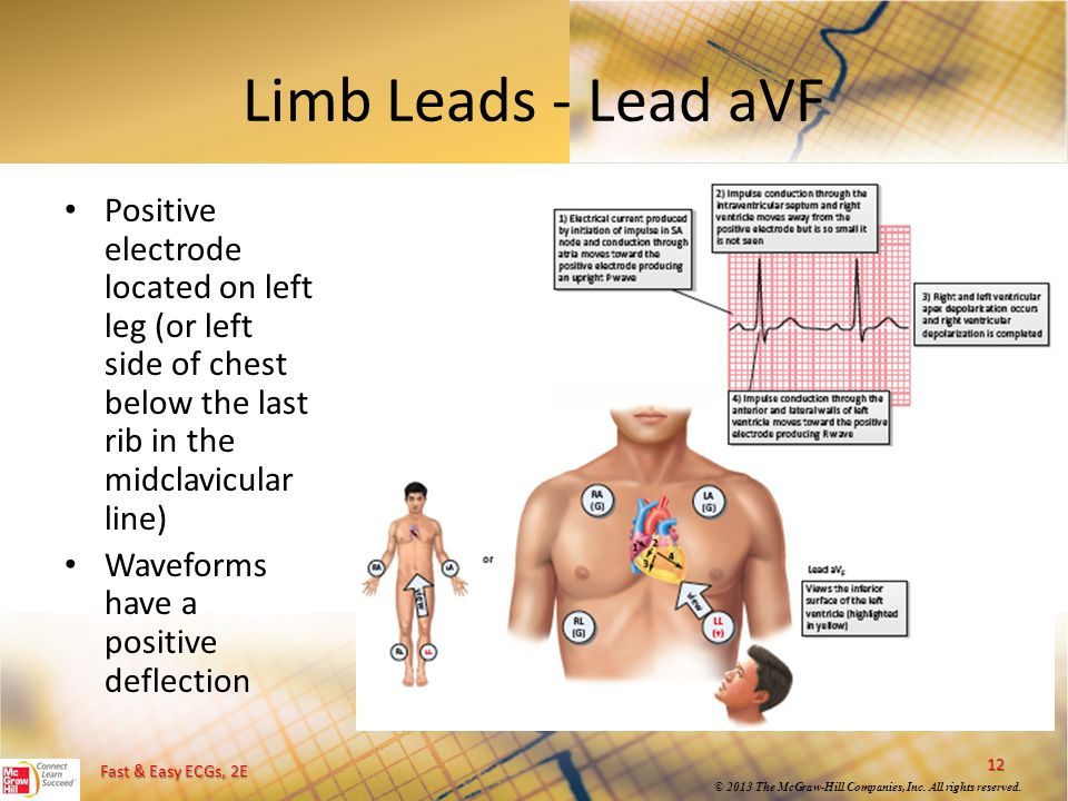 Limb Leads - Lead aVF Positive electrode located on left leg (or left side of chest below the last rib in the midclavicular line)