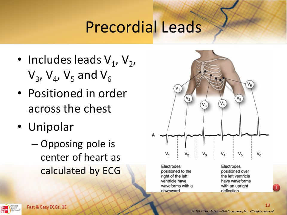 Precordial Leads Includes leads V1, V2, V3, V4, V5 and V6