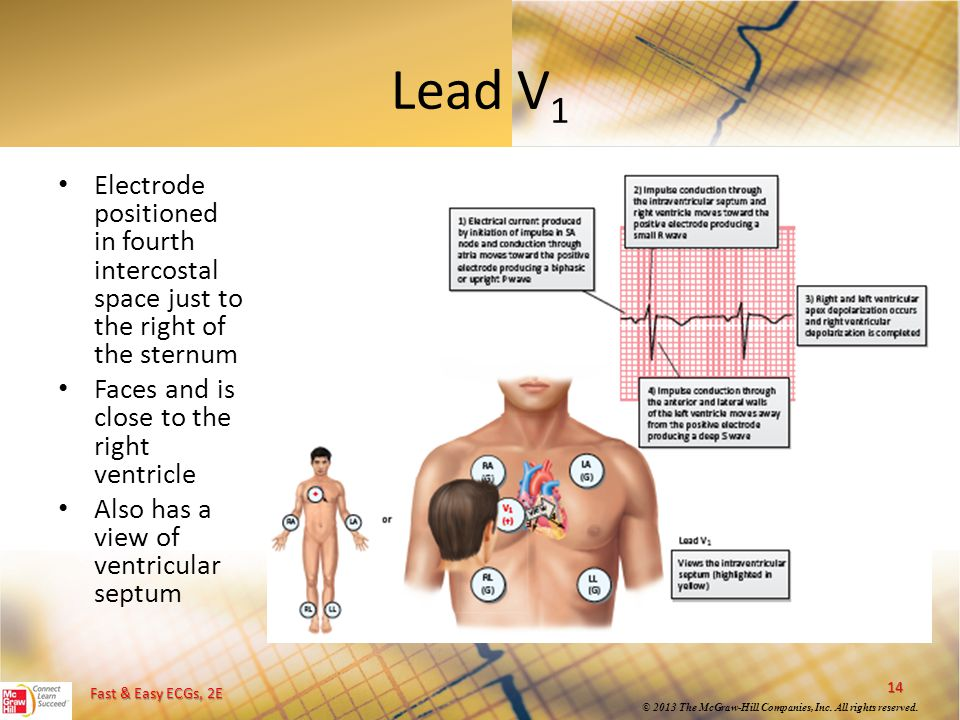 Lead V1 Electrode positioned in fourth intercostal space just to the right of the sternum. Faces and is close to the right ventricle.