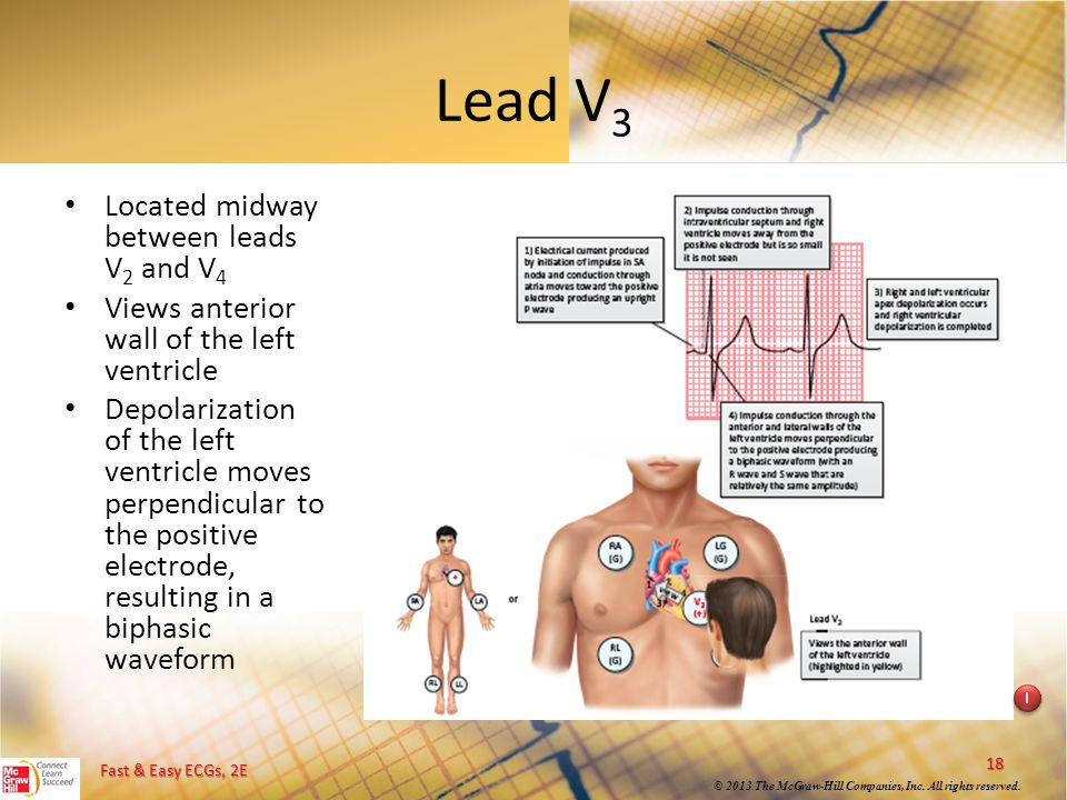 Lead V3 Located midway between leads V2 and V4