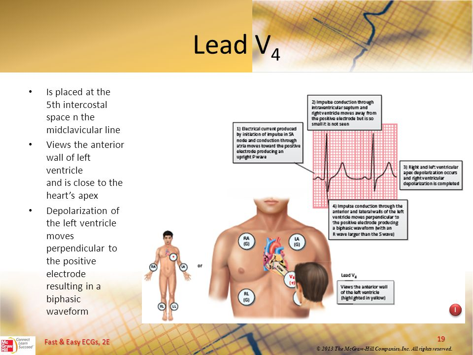 Lead V4 Is placed at the 5th intercostal space n the midclavicular line. Views the anterior wall of left ventricle and is close to the heart's apex.