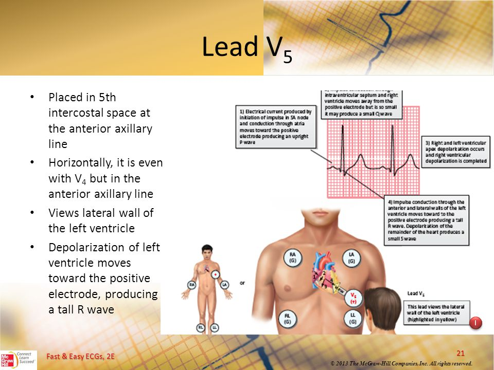 Lead V5 Placed in 5th intercostal space at the anterior axillary line