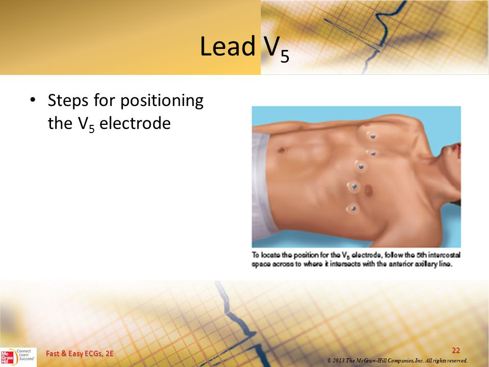 Lead V5 Steps for positioning the V5 electrode