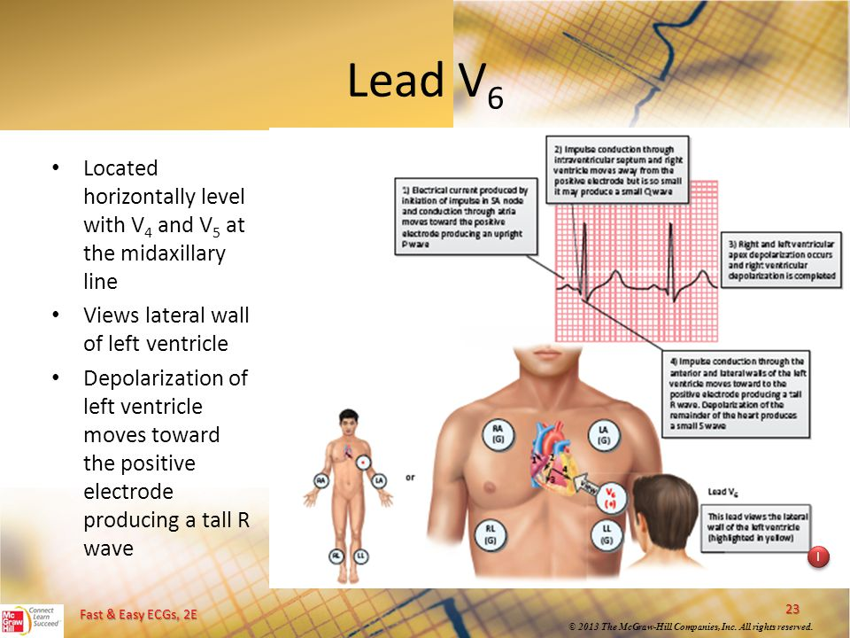 Lead V6 Located horizontally level with V4 and V5 at the midaxillary line. Views lateral wall of left ventricle.