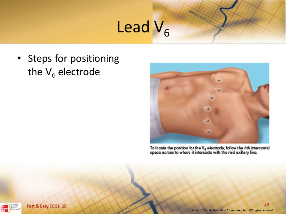 Lead V6 Steps for positioning the V6 electrode