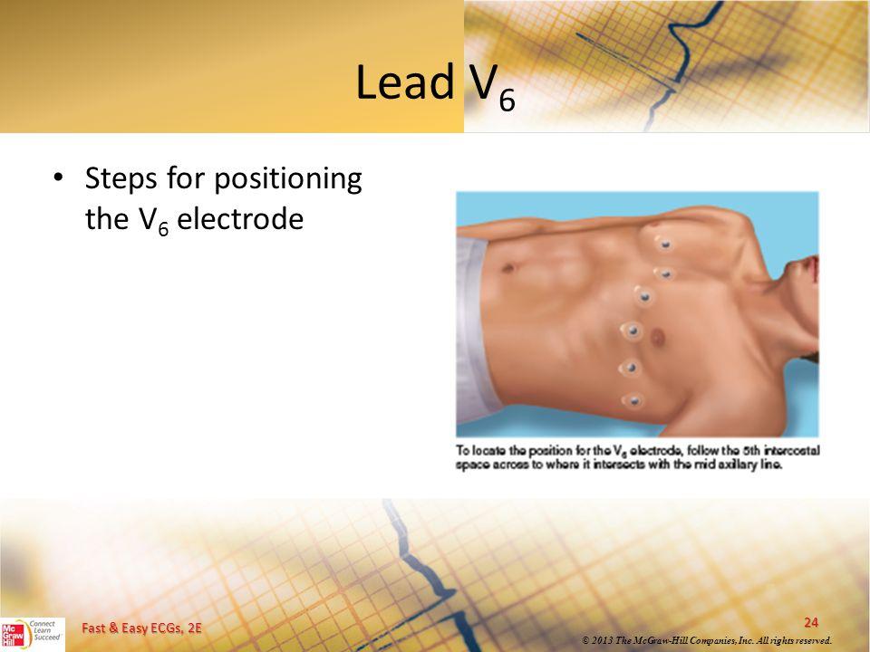 Lead V6 Steps for positioning the V6 electrode