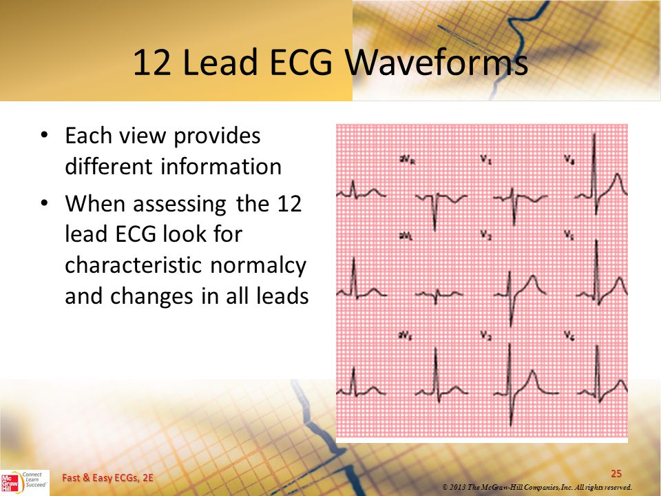 12 Lead ECG Waveforms Each view provides different information