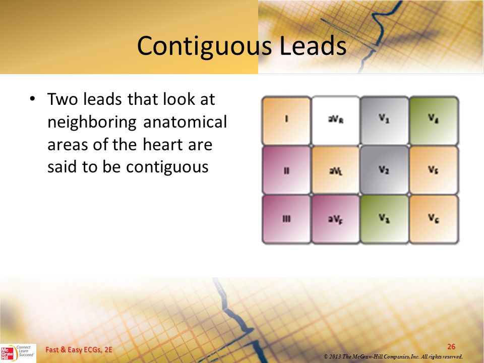 Contiguous Leads Two leads that look at neighboring anatomical areas of the heart are said to be contiguous.