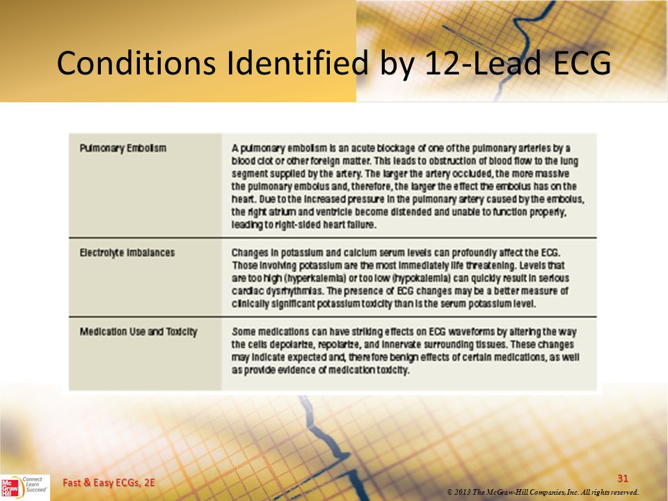 Conditions Identified by 12-Lead ECG