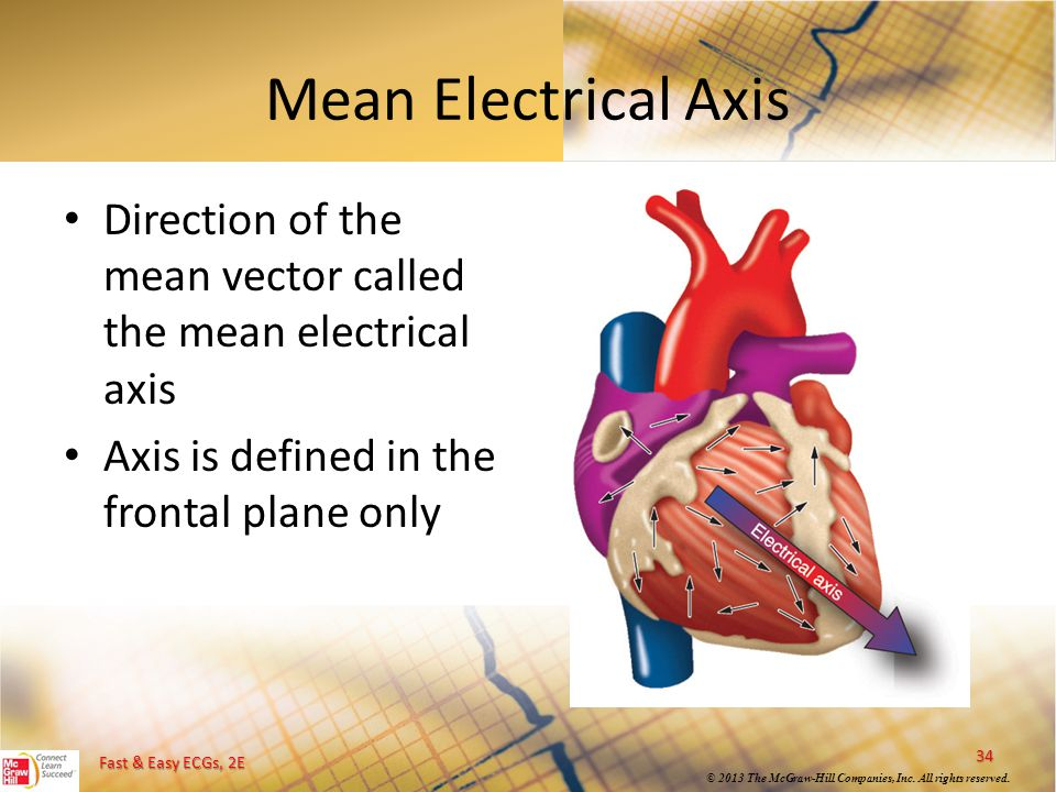 Mean Electrical Axis Direction of the mean vector called the mean electrical axis.
