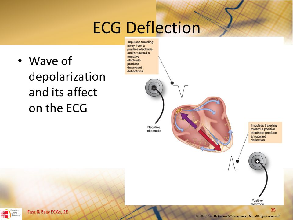 ECG Deflection Wave of depolarization and its affect on the ECG
