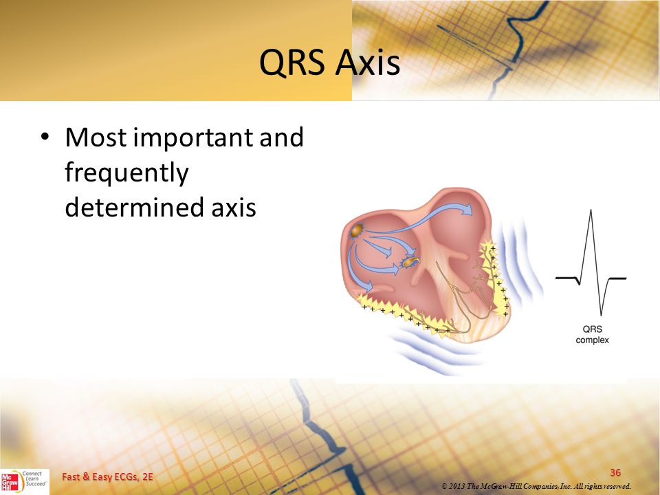 QRS Axis Most important and frequently determined axis