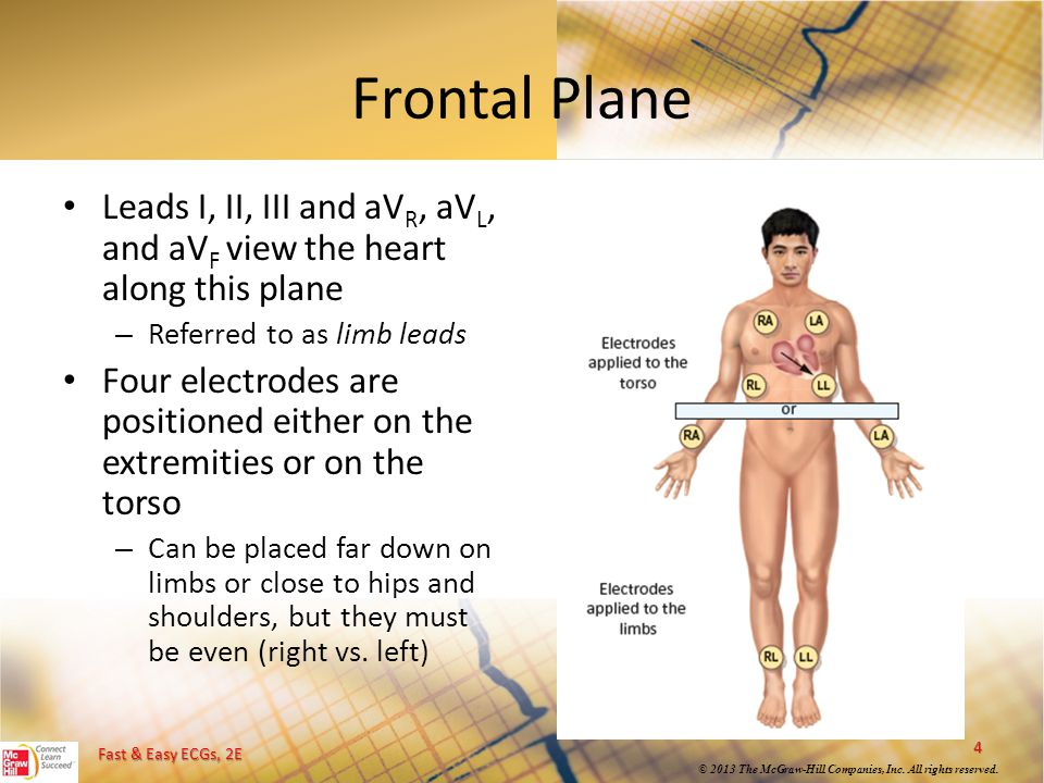 Frontal Plane Leads I, II, III and aVR, aVL, and aVF view the heart along this plane. Referred to as limb leads.