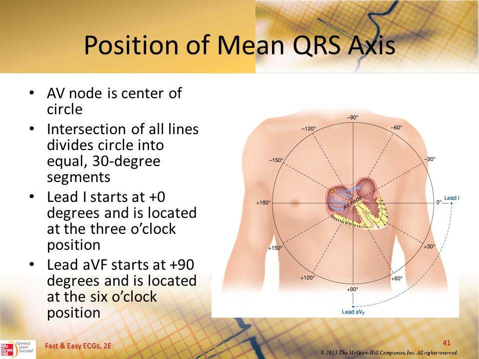 Position of Mean QRS Axis