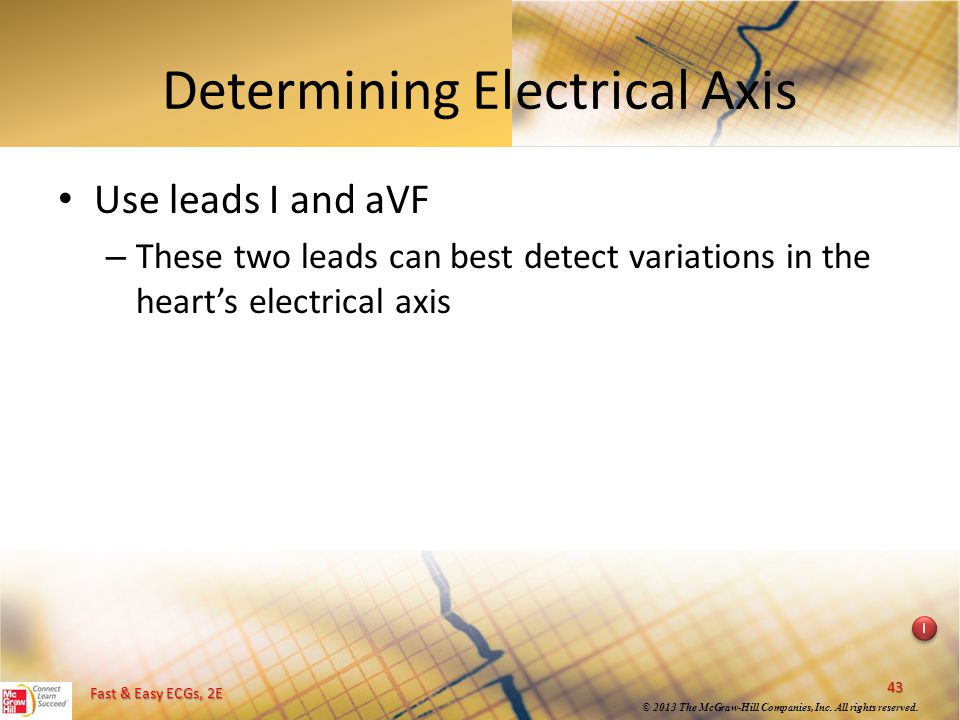 Determining Electrical Axis