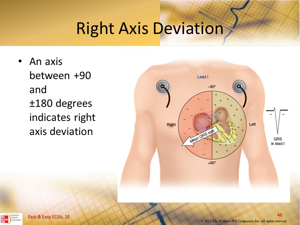 Right Axis Deviation An axis between +90 and ±180 degrees indicates right axis deviation