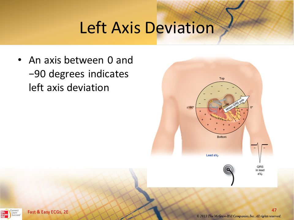 Left Axis Deviation An axis between 0 and −90 degrees indicates left axis deviation
