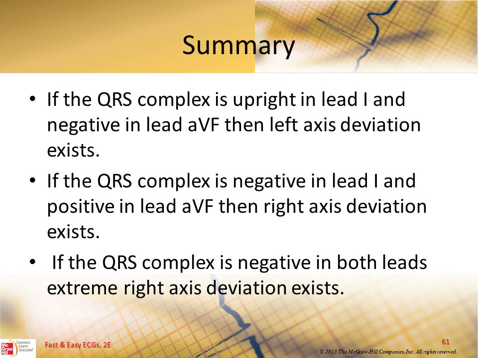 Summary If the QRS complex is upright in lead I and negative in lead aVF then left axis deviation exists.